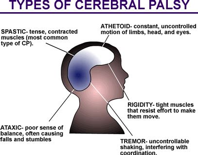 Cerebral palsy research paper